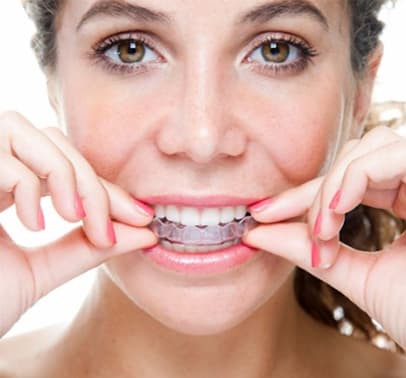 Invisalign Clear Braces, Surrey Dentist